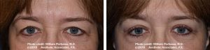 eyelid surgery lift in Portland Oregon